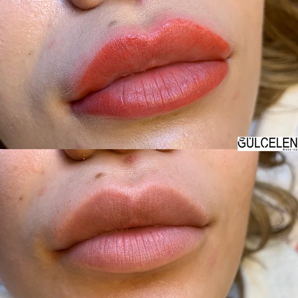 dudak-pigmentasyon-gül-çelen